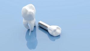 dental implant blue background