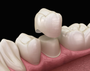 dental crown 3-d animation