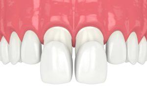 porcelain veneers being placed over front teeth