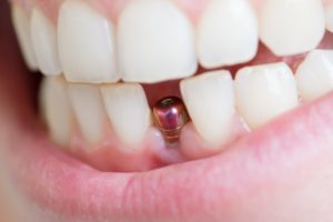 a dental implant in a person's mouth